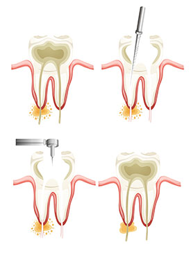 Root Canals | Sunstar Dental Care | Dentist La Puente, CA