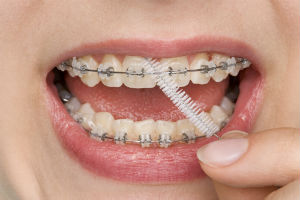 Orthodontics Available | Sunstar Dental Care | Dentist Haceinda Heights, CA
