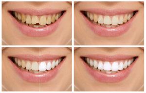 Cosmetic Dentistry | Sunstar Dental Care | Dentist Walnut, CA