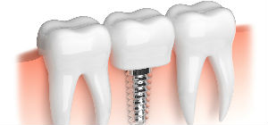Dental Implants | Sunstar Dental Care | Dentist La Puente, CA